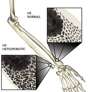 osteoporoza